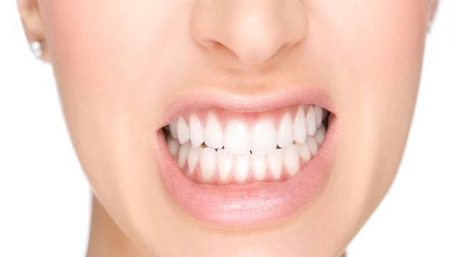 Bruxismo Atto Del Digrignamento Denti