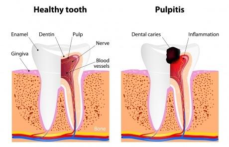 cause pulpite dentale