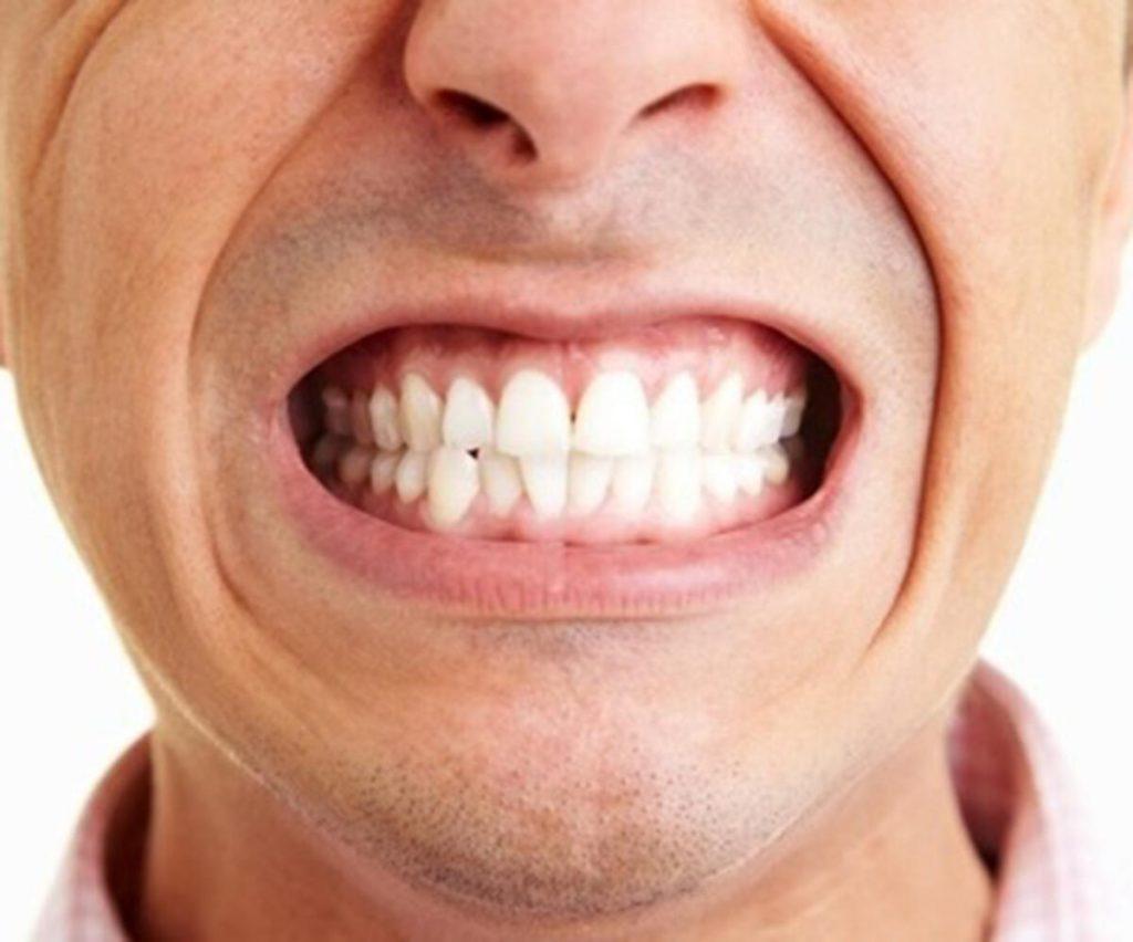 uomo che digrigna i denti, possibile causa di bruxismo