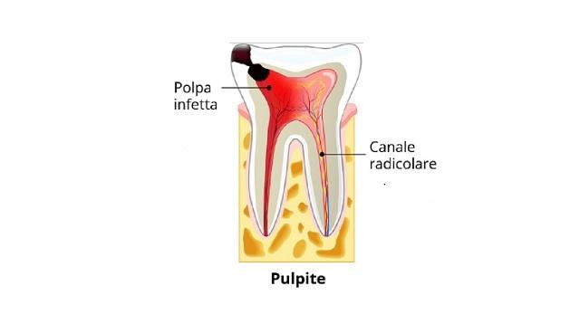 Pulpite Dentale: Come Identificarla, Come Curarla Al Meglio