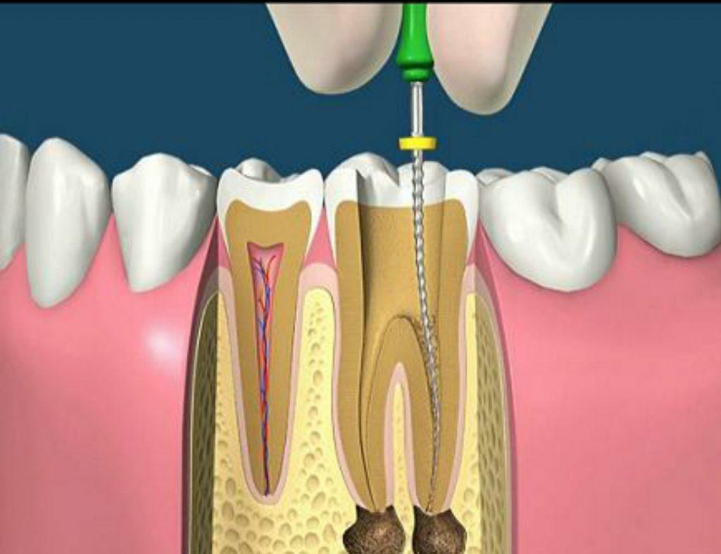 rappresentazione grafica di terapia canalare per cura pulpite dentale