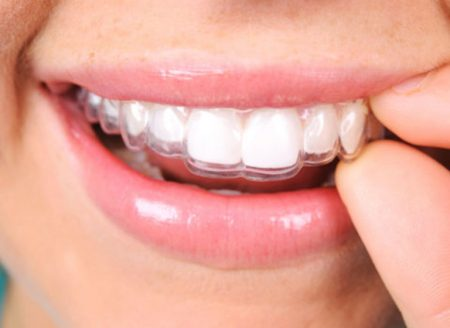 malocclusione dentale risolta con l'utilizzo di un bite come invisalign