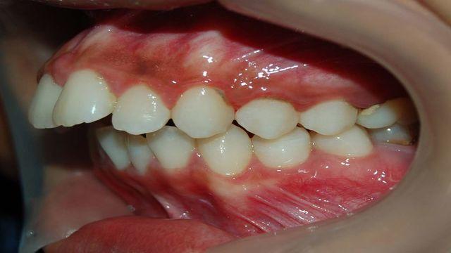Malocclusione Dentale Foto Di Un Caso