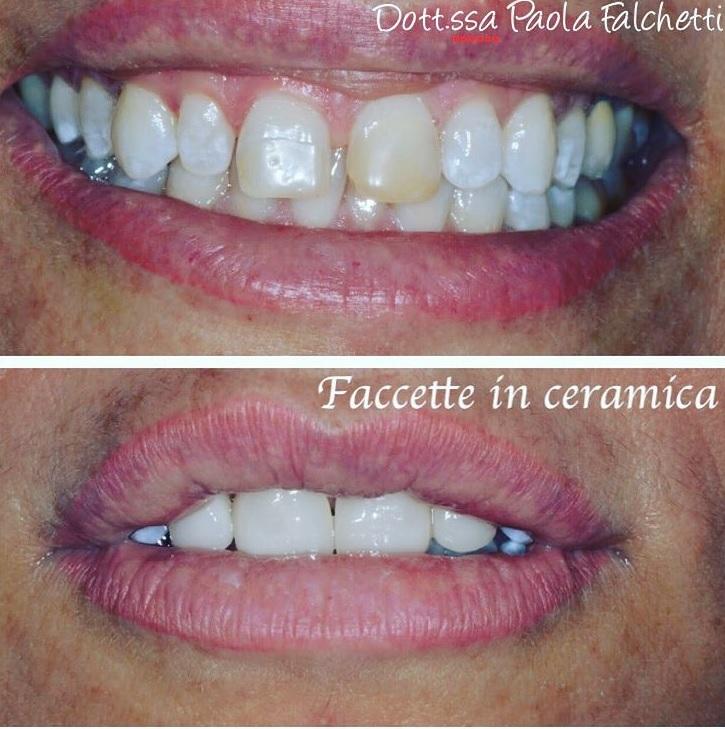 foto di applicazione faccette dentali presso lo Studio Falchetti di Roma