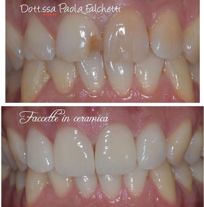 correzione inestetismo con faccette dentali presso lo Studio Falchetti di Roma