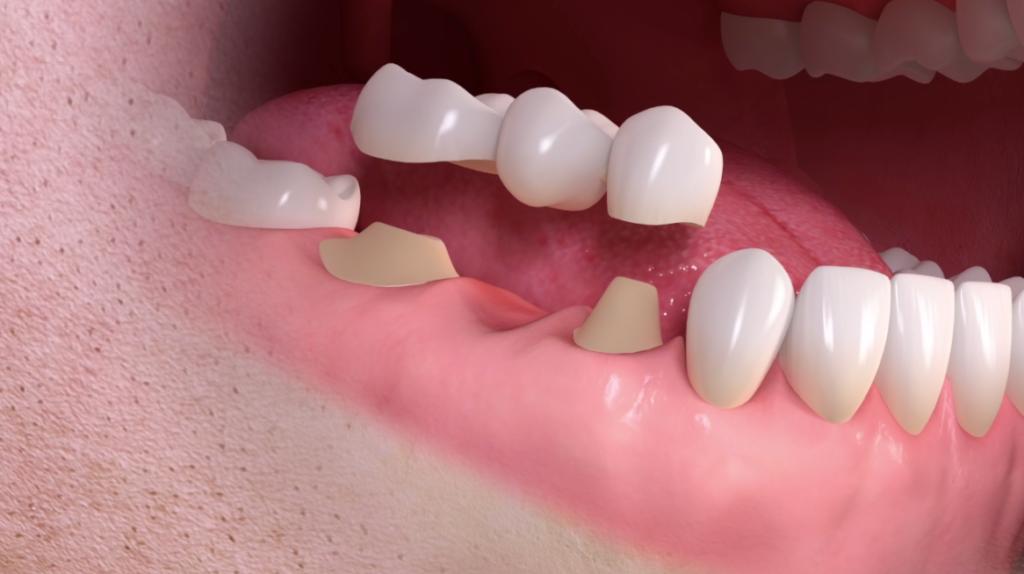 esempio grafico di un ponte dentale