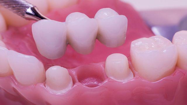 Impianto Dentale O Ponte? Scopriamo Le Differenze E Cosa Conviene Scegliere
