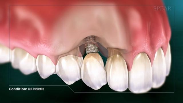 Perimplantite, Post Impianto Dentale Dolorante