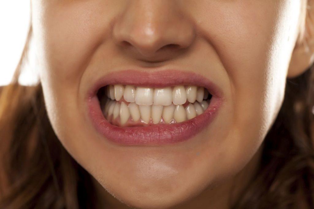 donna che digrigna i denti