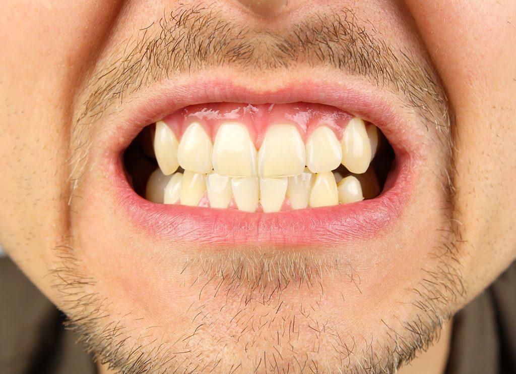 persona che digrigna i denti