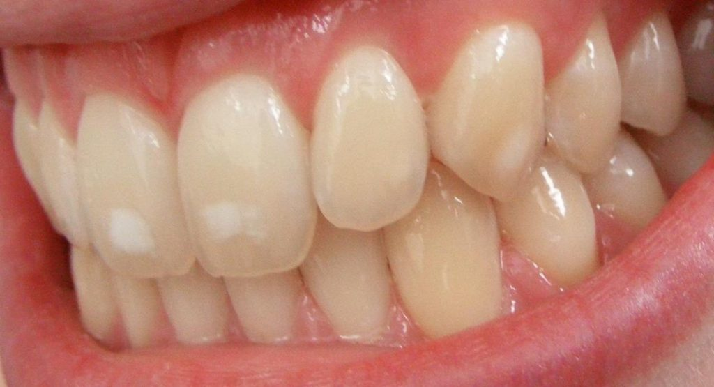 macchie bianche da fluorosi dentale