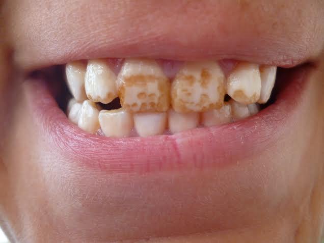 pigmentazione da eccesso di fluoro nei denti