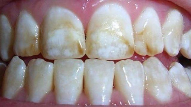 Fluorosi O Eccesso Di Fluoro Nei Denti