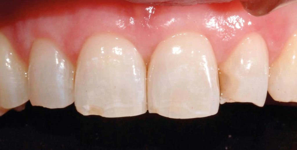 caso di abrasione dentale