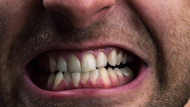 Digrignare I Denti In Maniera Inconsapevole
